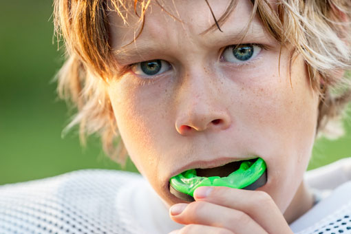 Kids Mouthguard