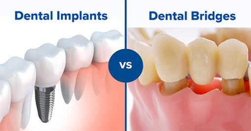 Implants Vs. Bridges