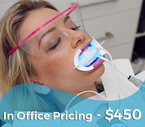 GLO Teeth Whitening Offer